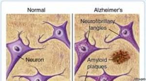 Shpresa të reja për të sëmurët me Alzheimer