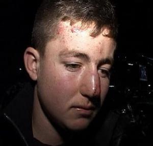 Shkup, rrihen brutalisht 4 adoleshentë shqiptarë