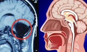Vajza pas 24 vitesh zbulon se nuk kishte 'trurin e vogël'