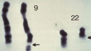 """Ç'është kromozomi """"Filadelfia""""?"""
